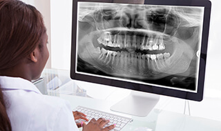 dentist looking at digital x-ray